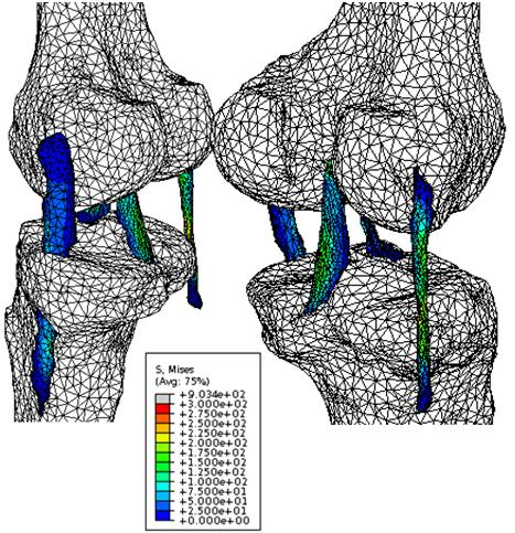 Finite Element knee model