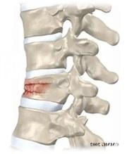 Spine_Fig1