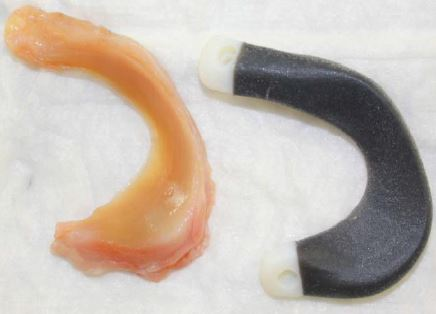 Development and testing of an anatomically shaped meniscus implant