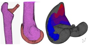 Finite element models used for hip and knee implant analysis and an example of analysis output; Thomas Anijs, Orthopaedic Research Laboratory Nijmegen, Radboud umc