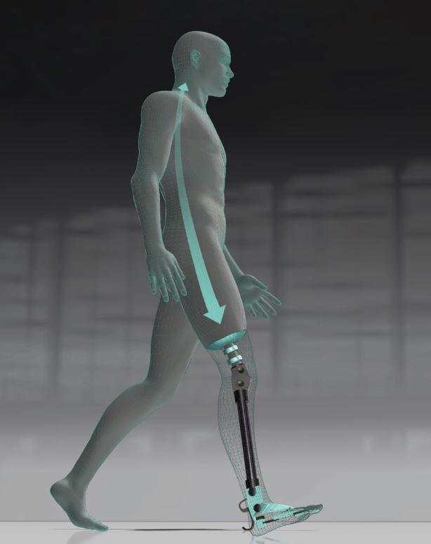MyLeg: image of osseointegrated leg prosthesis   Orthopaedic Research Laboratory Nijmegen   Radboud University Medical Centre   radboudumc