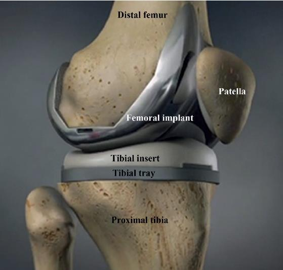A knee joint with total knee replacement. The different bony and prosthetic parts are identified. Navid Soltani Hafshejani | Orthopaedic Research Laboratory Nijmegen, radboudumc, Radboud university medical centre