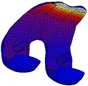 Example of a finite element analysis of a femoral component of a total knee arthroplasty, by Corine Post | Orthopaedic Research Laboratory Nijmegen, radboudumc, Radboud university medical centre