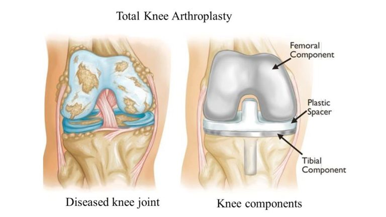 Total Knee Artroplasty