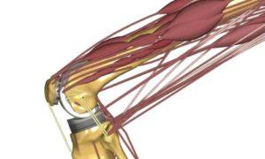 Musculoskeletal modeling